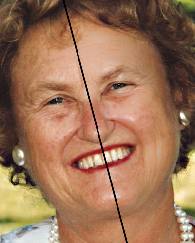 Adjust-what-wrinkles